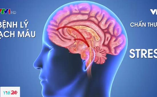 Căng thẳng có thể dẫn đến Alzheimer
