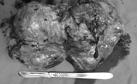 Đau tức hông suốt 2 tuần, phát hiện khối u thượng thận khổng lồ
