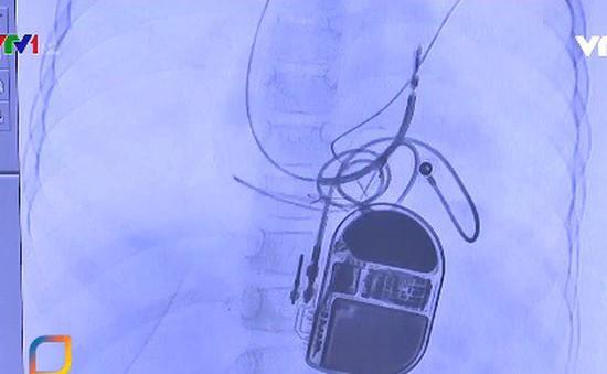 Lần đầu tiên đặt máy chống rung để ổn định nhịp tim cho trẻ