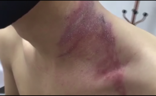 Hà Nội ghi nhận hàng nghìn trường hợp nhiễm độc kiến ba khoang phải vào viện