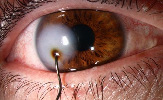 Suýt mù mắt vì mảnh kim loại đâm thủng mắt