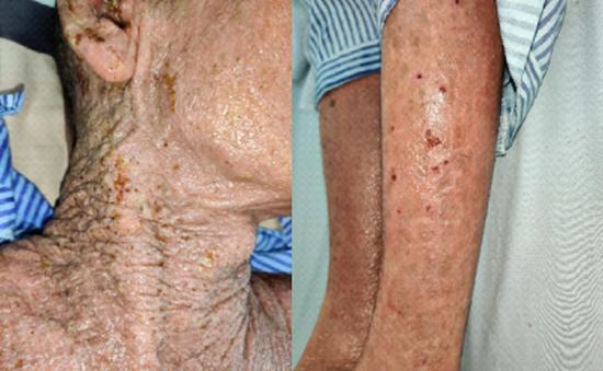 Tổn thương da lan tỏa toàn thân do nhiễm herpes