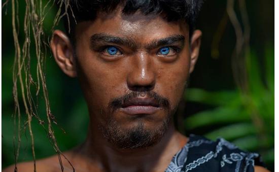 Hội chứng hiếm gặp khiến nhãn cầu mắt trở nên xanh sáng ở một bộ tộc tại Indonesia