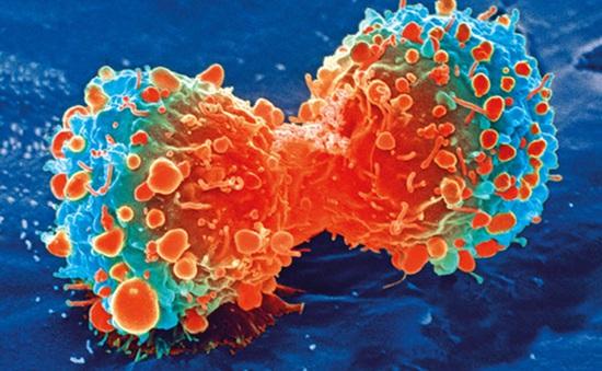 Israel tìm ra cách tiêu diệt tế bào ung thư không gây tác dụng phụ