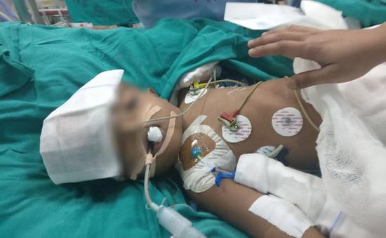 3 năm sau phẫu thuật, một bé trong cặp song sinh dính liền đầu đã tử vong