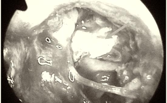 Bé gái 13 tuổi bị điếc do khối cholesteatoma bẩm sinh trong tai giữa ăn mòn chuỗi xương con