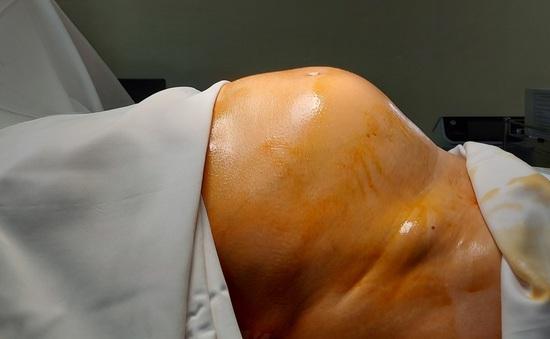 Người phụ nữ 64 tuổi tá hỏa nhập viện vì tăng cân, bụng to như thai 7 tháng