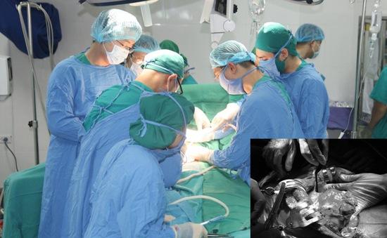 Phẫu thuật cắt gan - Lựa chọn điều trị triệt để ung thư gan