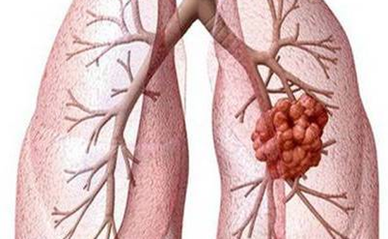 Liệu pháp nhắm trúng đích trong điều trị ung thư phổi