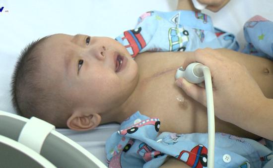 Khó khăn của bé trai 9 tháng tuổi đứng trước ca phẫu thuật tim lần 2