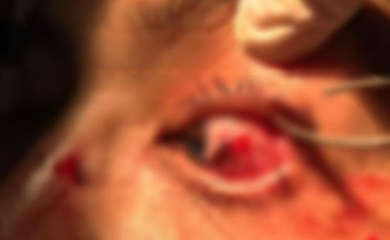 Tổn thương mắt nghiêm trọng do lưỡi câu cá móc vào mắt