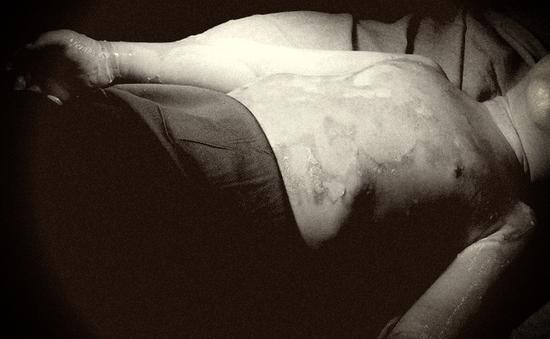 Bé 3 tuổi bỏng nặng vì ngã vào chậu nước sôi