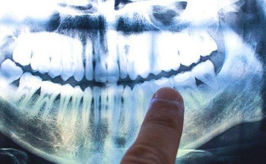 """Bí ẩn những đường """"vòng cây"""" kỳ lạ trong răng con người"""