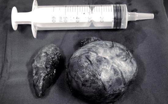 Phẫu thuật khối u giáp có phần hoại tử, đè đẩy khí quản
