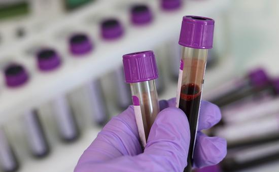 Phương thức xét nghiệm máu mới cải thiện hiệu quả sàng lọc ung thư gan