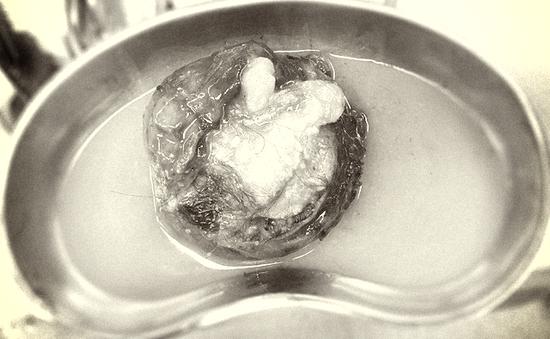 Cắt bỏ khối u quái ổ bụng hiếm gặp có tóc, xương, mỡ bên trong