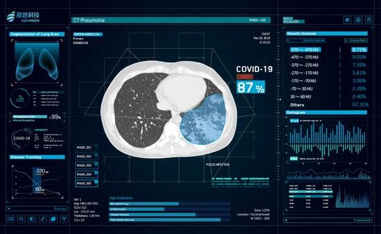 Trung Quốc sử dụng AI để dự báo nguy cơ bệnh nhân COVID-19 trở nặng