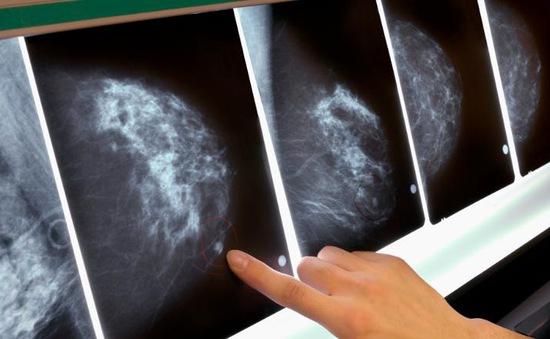 Trì hoãn tầm soát, số người Mỹ mắc ung thư dự kiến tăng cao