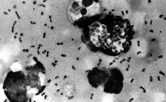 Trung Quốc phong tỏa một làng sau khi xuất hiện ca tử vong vì dịch hạch