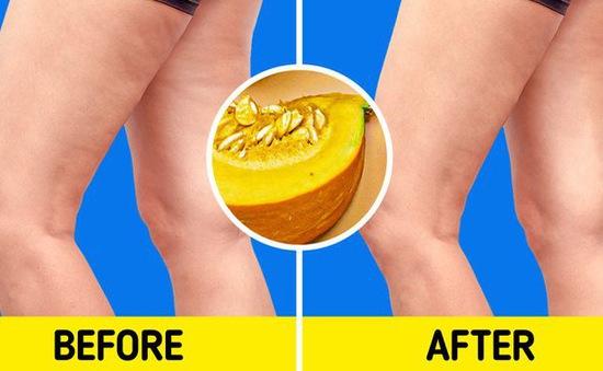 7 thực phẩm quen thuộc giúp bạn tạm biệt nỗi lo rạn da, trùng da