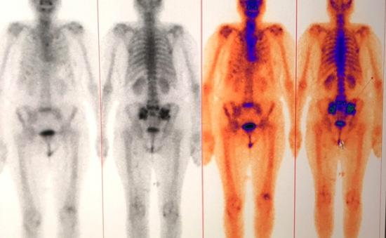 Xạ hình xương - Phương pháp chẩn đoán ung thư di căn xương