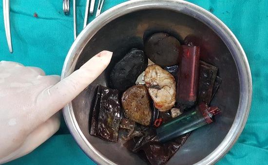 Bác sĩ lấy bật lửa, sỏi, túi nilon từ... dạ dày bệnh nhân