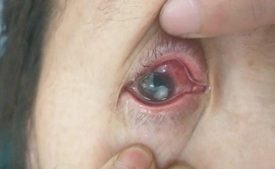 Viêm loét giác mạc - Đừng xem thường chấn thương nhẹ ở mắt