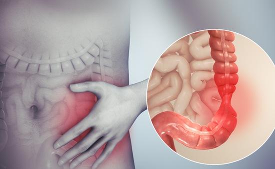 Phát hiện nguyên nhân gây nên hội chứng ruột kích thích