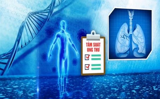 Tiến bộ mới trong điều trị ung thư phổi