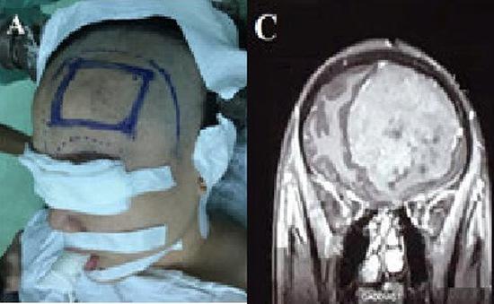 Nhập viện vì các triệu chứng tâm thần, cô gái trẻ phát hiện u màng não khổng lồ