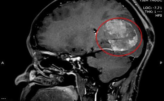 Ngã chấn thương sọ não, vào viện bất ngờ phát hiện khối u não kích thước lớn
