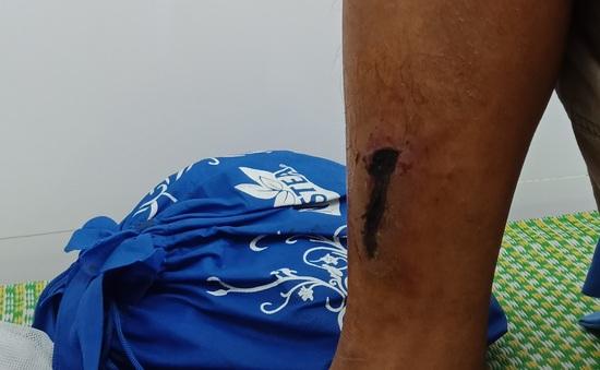 Chủ quan với vết thương ở chân, bệnh nhân nhập viện vì mắc uốn ván