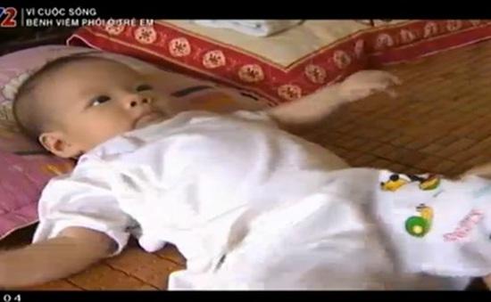 Viêm phổi - Bệnh nguy hiểm ở trẻ nhỏ