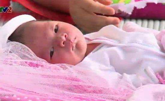 Những bệnh thường gặp ở trẻ sơ sinh
