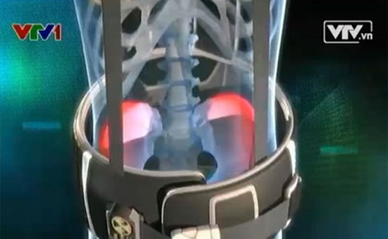 Thắt lưng chống phóng xạ