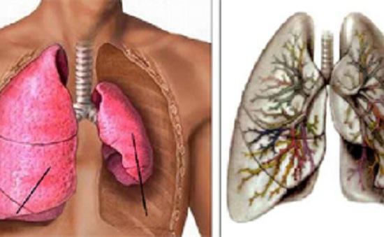 Bệnh phổi tắc nghẽn mãn tính: Dấu hiệu và cách điều trị