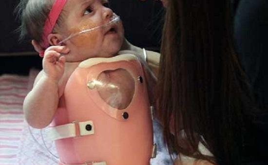 Cứu sống bé sơ sinh có trái tim bên ngoài cơ thể