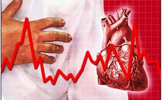 Tỷ lệ rối loạn nhịp tim ngày càng gia tăng tại Việt Nam