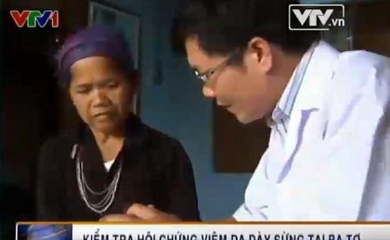 Kiểm tra hội chứng viêm da dày sừng tại Ba Tơ