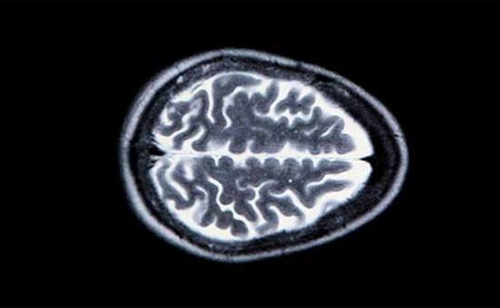 Khởi động dự án tái tạo não người