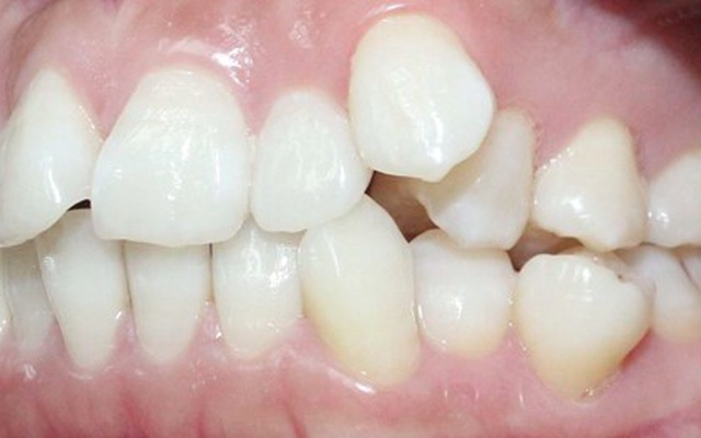 Cách điều trị răng xô lệch tận gốc | VTV.VN