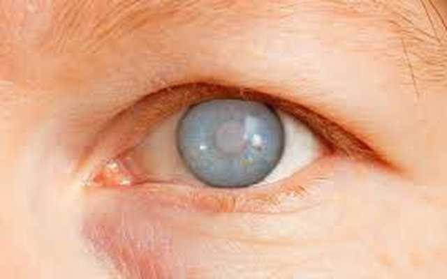 Những yếu tố liên quan đến bệnh glaucoma