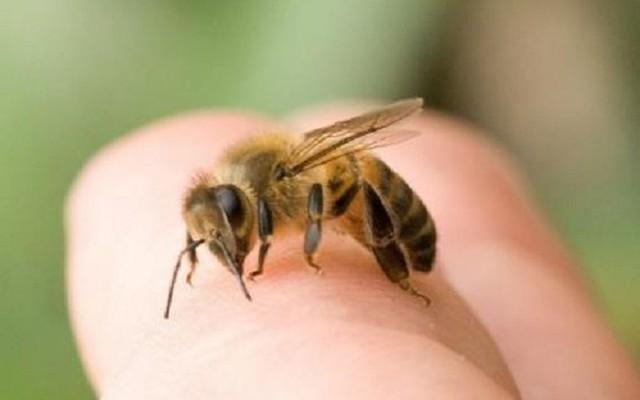Sốc phản vệ nguy kịch do bị ong đốt
