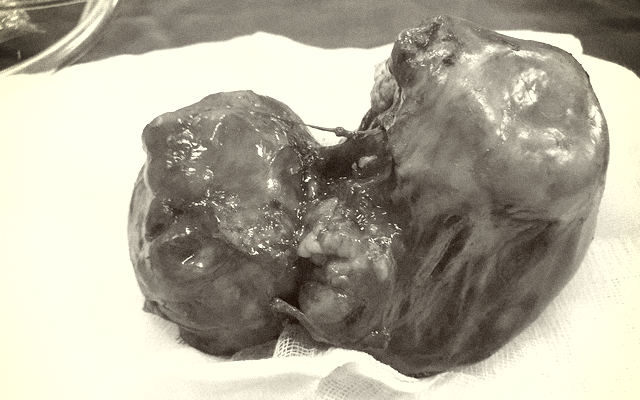 """Hy hữu: Bé gái 8 tháng tuổi mang """"u dạng thai"""" nặng 2kg"""