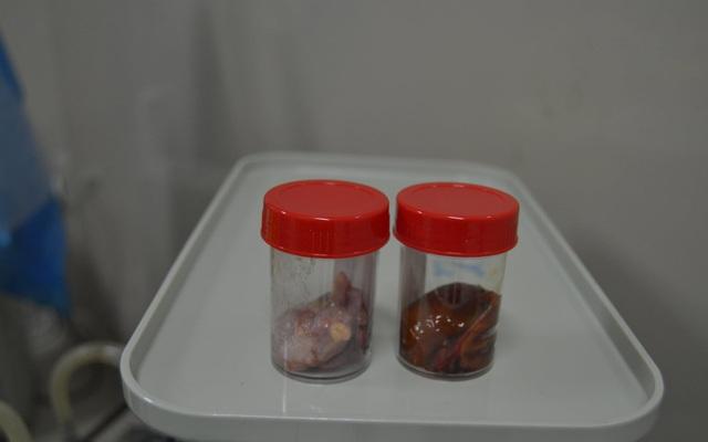"""Phẫu thuật cắt túi mật """"hóa đá"""" và u bì buồng trứng cho một bệnh nhân"""
