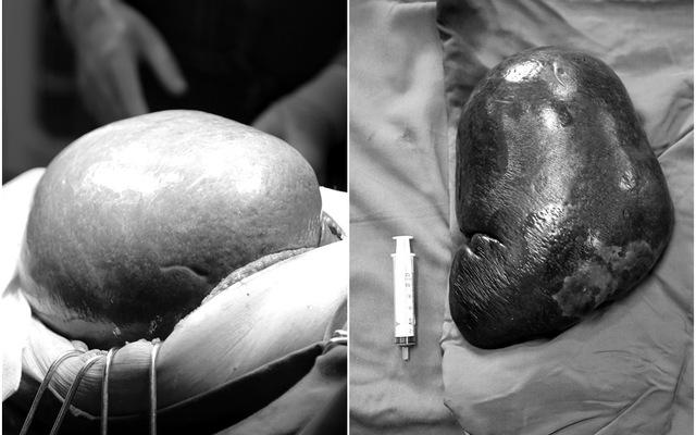 """Cắt khối u lách kích thước """"khủng"""" dọa vỡ cho bệnh nhân 70 tuổi"""