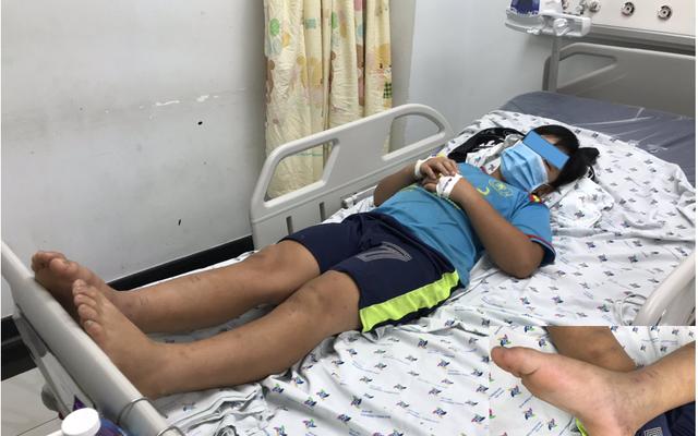 Cấp cứu bé trai bị rối loạn đông máu do rắn lục đuôi đỏ cắn