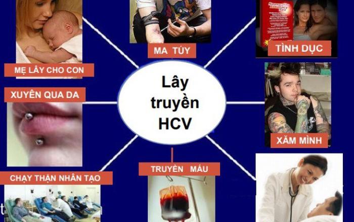 Cơ hội khám, tư vấn và xét nghiệm viêm gan B,C cho 2.000 dân tại Hà Nội