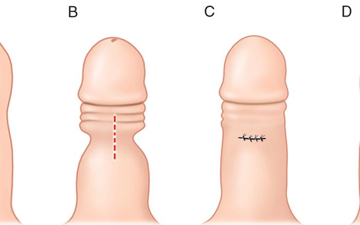 Bao quy đầu dài có ảnh hưởng gì? -