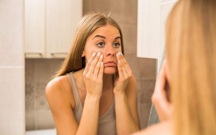 Những nguyên nhân gây quầng thâm mắt | VTV.VN